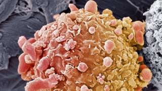 _89295494_m1320914-skin_cancer_cell,_sem-spl