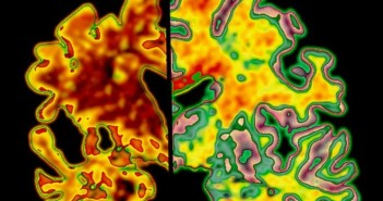 _89297906_m1080331-sectioned_brains_alzheimer_s_disease_vs_normal-spl