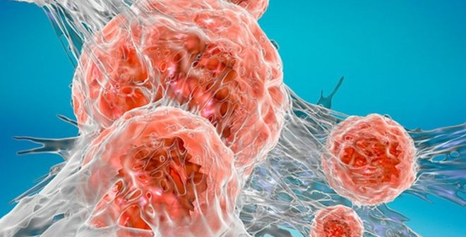 _92611001_c0295220-cancer_cell_illustration-spl