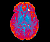 S_0616_multiple-sclerosis-brain_C0294657_A