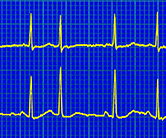 Irregular heartbeat, ECG