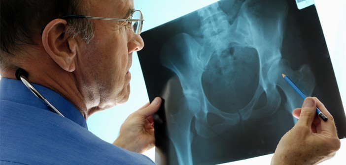 osteoporosis-treatment-heading